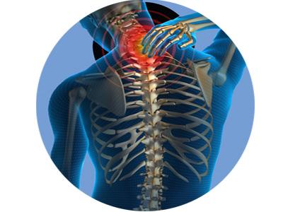 spine-400